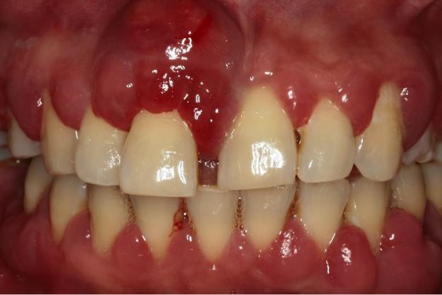 Onbehandelde Vergevorderde Parodontitis