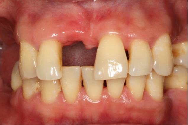 Behandelde parodontitis